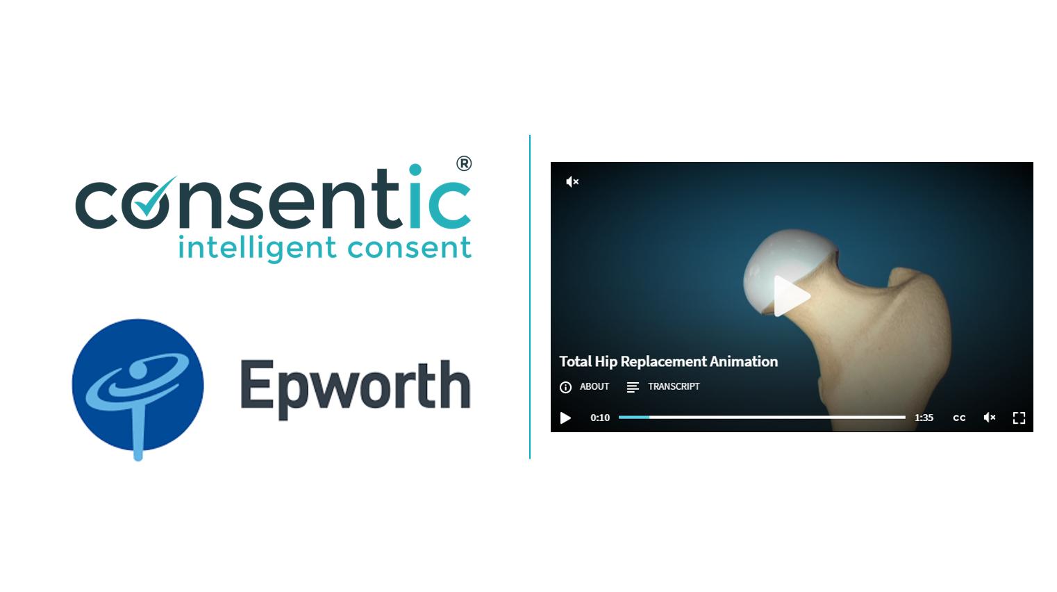 Epworth Consentic E-Consent Study